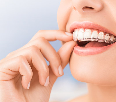 Make the most of your Invisalign