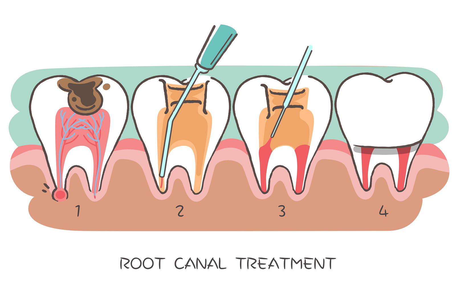 Don't Fear the Root Canal!
