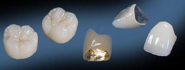 Todo sobre coronas dentales