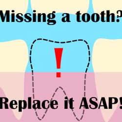 ¡Por qué debería reemplazar su diente perdido lo antes posible!