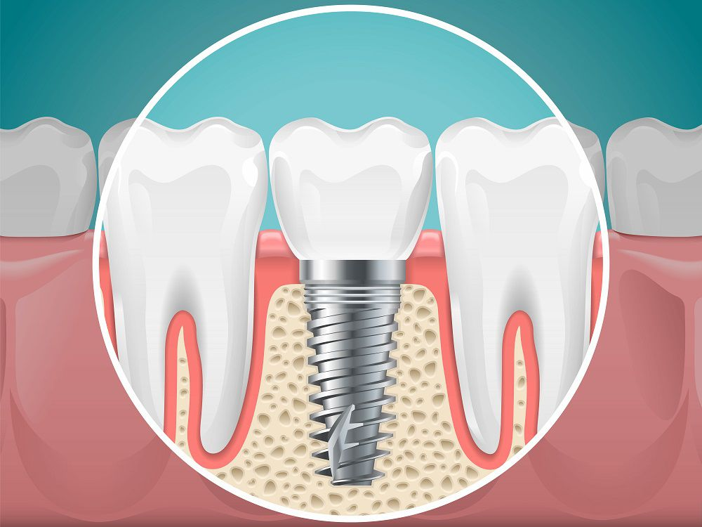Benefits of Dental Implants | Cosmetic Dentist Santa Clarita, CA