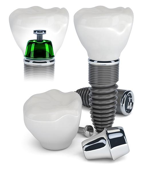 Dental Implants Whittier