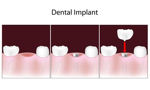 Hacienda Heights Dental Implants