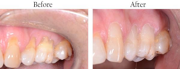 West Whittier Dentist