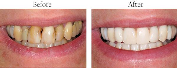 Dentist Whittier