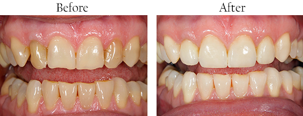 Dentist West Whittier